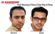 Hair Wig in Patna | Hair Weaving in Patna | Hair Wig Clinic in in Patn